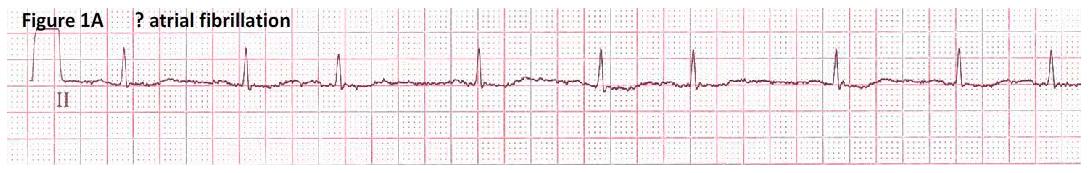 Atrial fibrillation ecg strip images