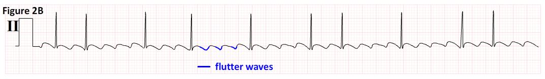 Atrial fibrillation ecg strip images 949
